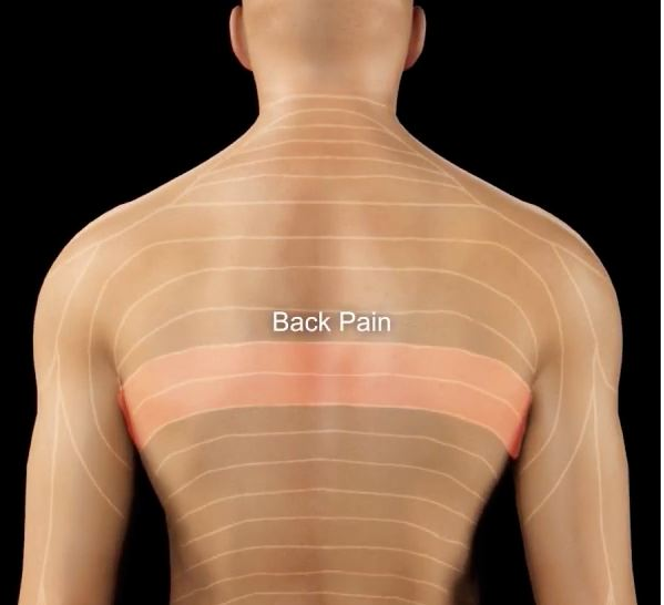 Degenerative Joint Disease With Spurs And Thoracic Spine Pain