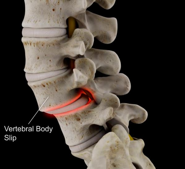 laser treatment for spondylothesis Laser spine surgery back surgery for spondylolisthesis is not usually advantageous for adult patients with no symptoms, or whose symptoms are manageable using.