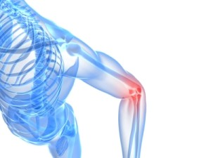 Bursitis Treated at Request Phyiscal Therapy