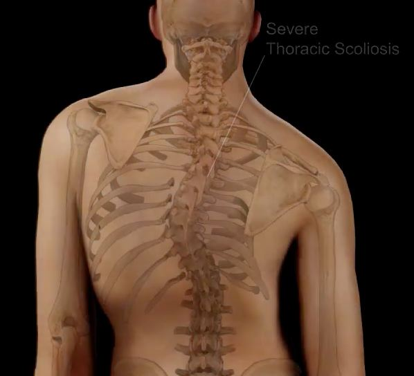 scoliosis request physical therapy diagram of scoliosis diagram of scoliosis diagram of scoliosis diagram of scoliosis