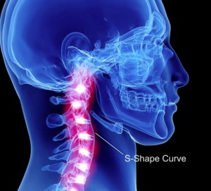 Treat Whiplash at Request Physical Therapy